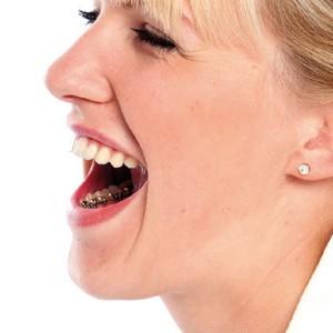 lingual-braces-face